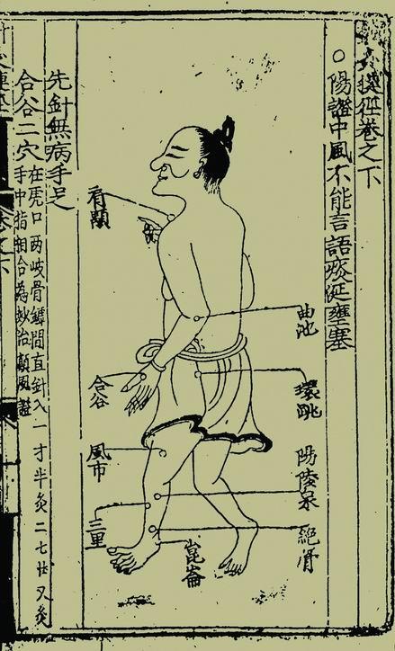 古代文献中针灸治疗中风多用于偏瘫,口眼歪斜等症状的治疗.