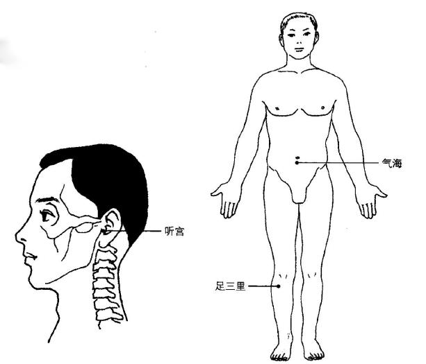 耳聋艾灸疗法