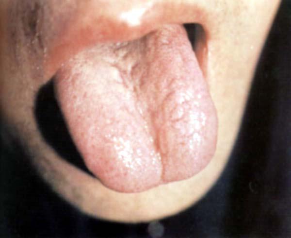淡红舌白滑苔黄心