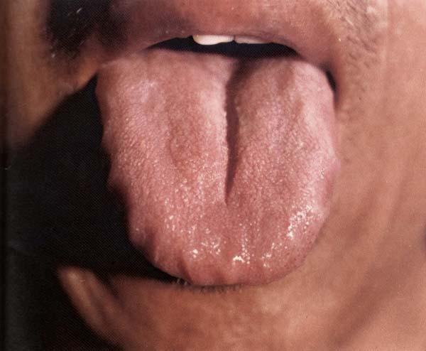 红色纵裂齿痕舌薄白齿