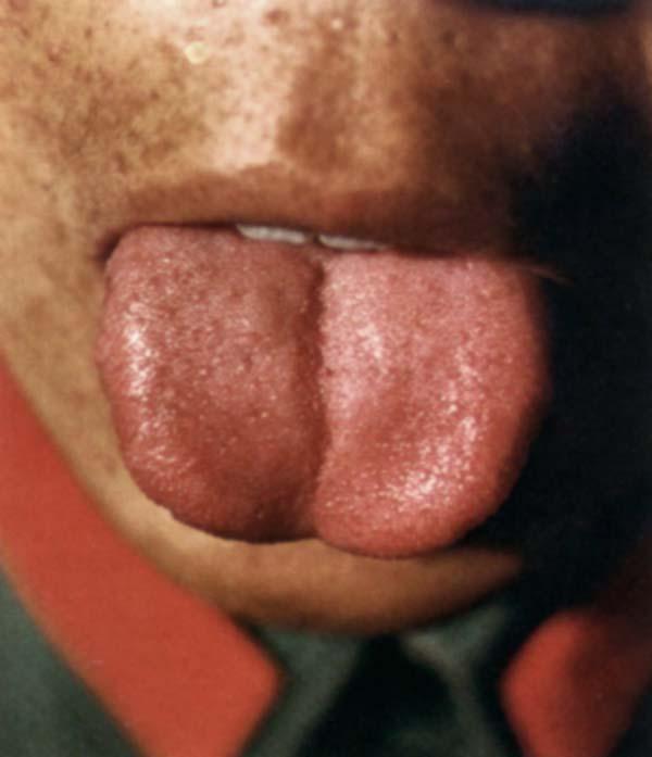 红舌白点薄白苔